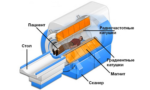 the device of the MRI apparatus