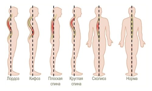 violations of the spine