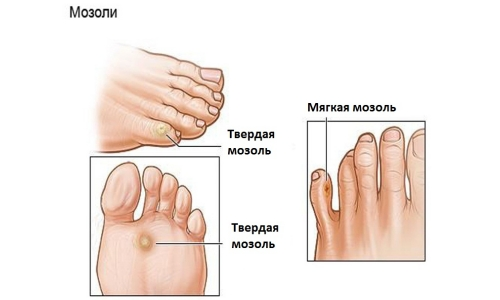 the location of the callus