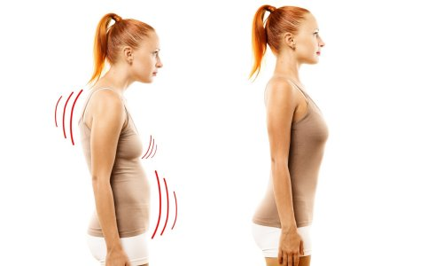 the Need for posture correction