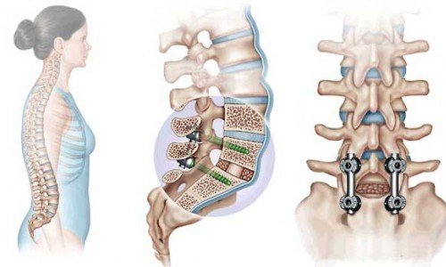 transpedicular fixation of the spine
