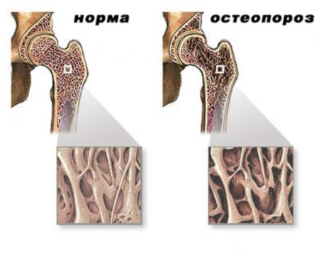 the symptoms and signs of osteoporosis of the hip