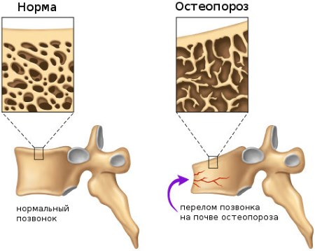 Osteoporosis cause compression fracture of the vertebra