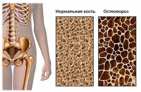 diffuse osteoporosis