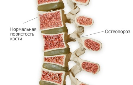 diffuse osteoporosis of the spine