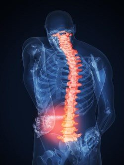 pain in spinal stenosis