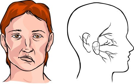 the symptoms of muscle rigidity of the neck after a stroke