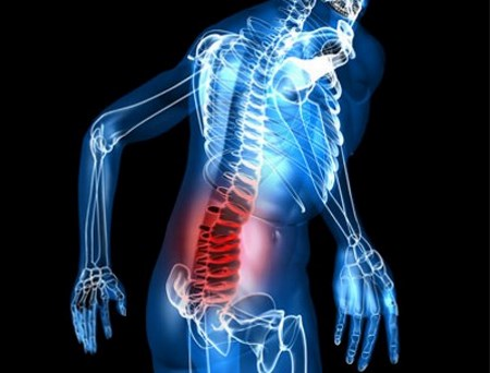 physiotherapy treatment for retrolisthesis