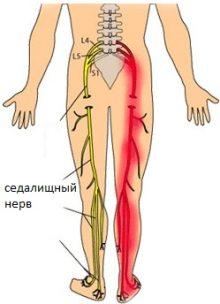 pain in the hips and lower leg