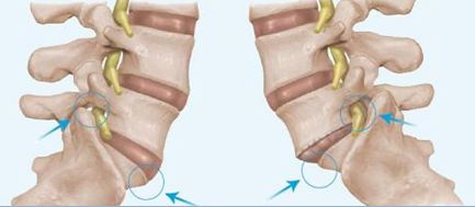 retrolisthesis and physical therapy