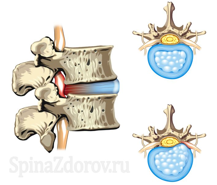 picture: herniated disc