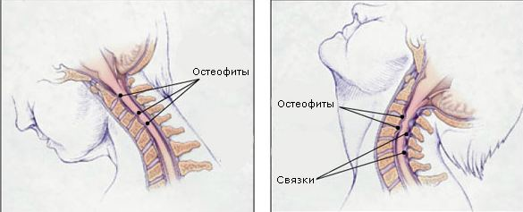 spondylosis of the cervical dangerous ossification of ligaments and difficulty in flexion/extension head