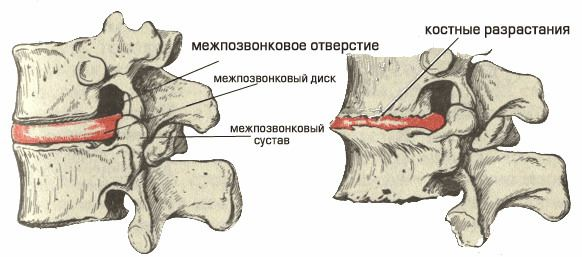 bony growths at the spondylosis of the lumbar spine