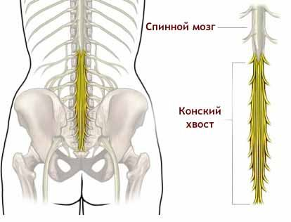 nerve damage in the terminal part of the spine when sacroiliitis