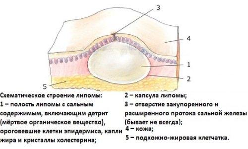 left clavicle lipoma icd 10